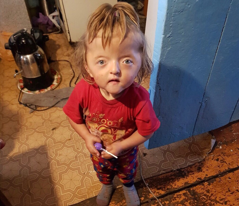 Необходимо около 10 операций: Двухлетней Соне из глубинки Башкирии поставили точный диагноз