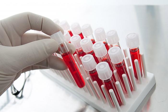 Известно, в каком возрасте у жителей Башкирии ВИЧ выявляют чаще